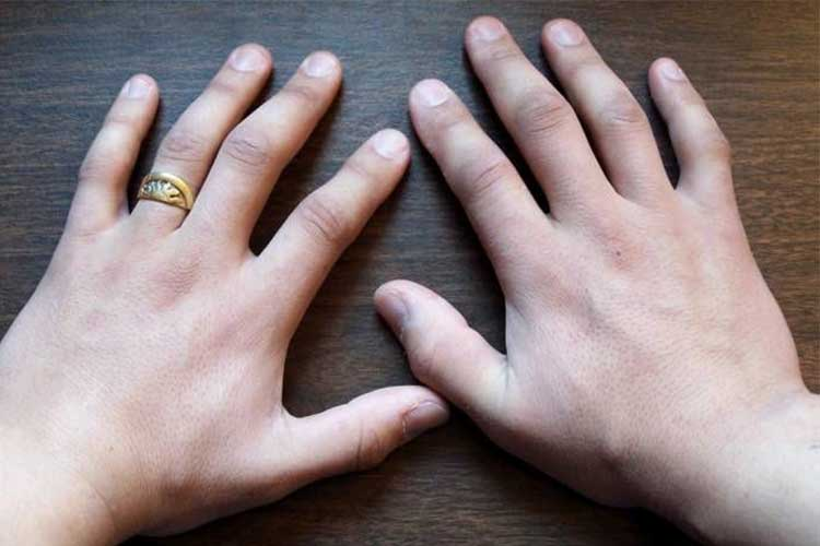swelling of the hands in the cold